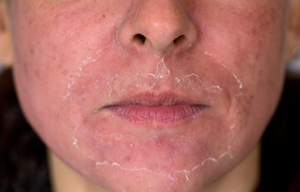 What Are Chemical Skin Peels ?
